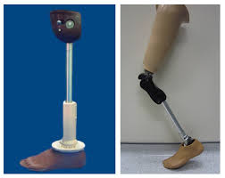 Certificate in Prosthetic & Orthotic (CPO)